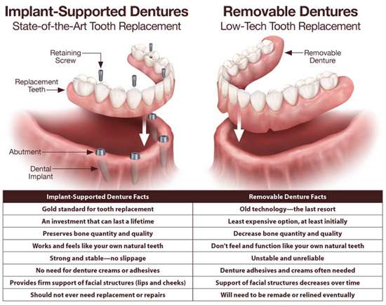 Implant supported dentures and regular dentures.