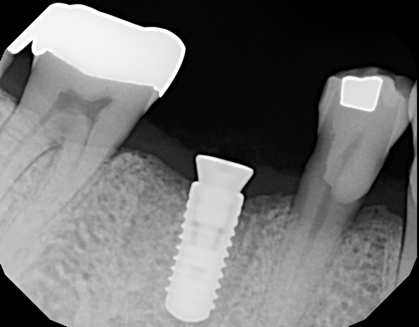 dental implants thousand oaks