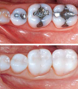 The result of an amalgam replacement procedure. While amalgam fillings are easy to spot, composite fillings blend very well with natural tooth structure. However, this difference in esthetics does not necessarily make one type of filling  functionally  superior.