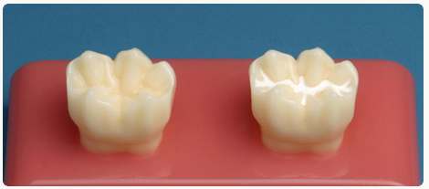 A typical before (left) and after (right) of dental sealants.
