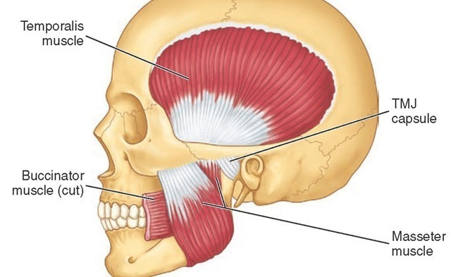 A diagram highlighting the masseter muscle.