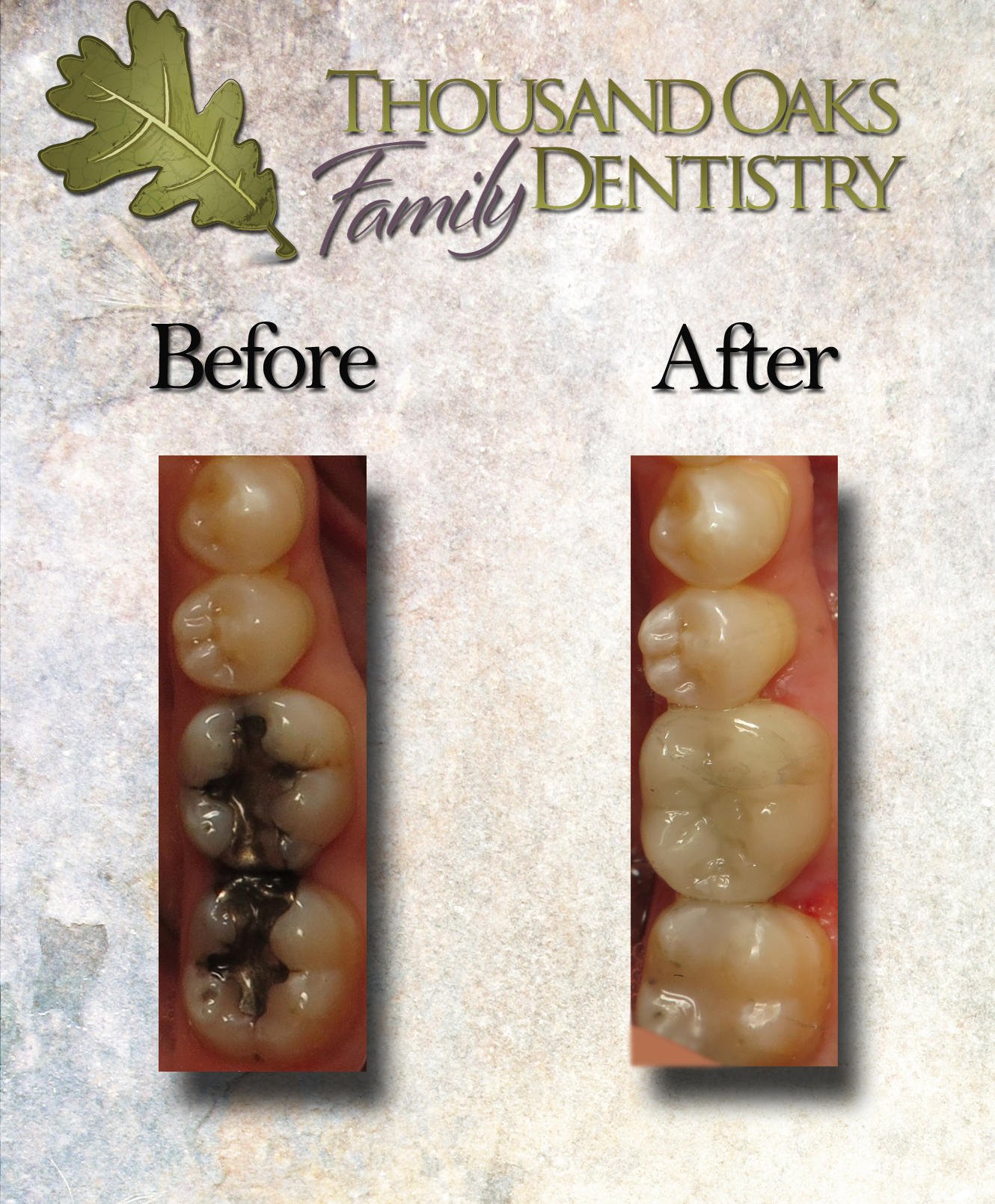One of the hundreds of beautiful amalgam swaps we have performed at our office.