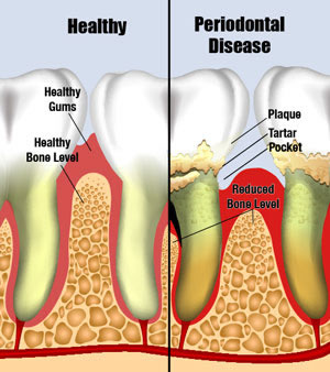 A diagram visualizing the difference between healthy and diseased gum tissue and bone.
