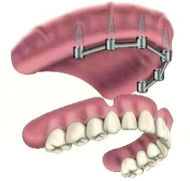 A diagram of how implant supported dentures are mounted