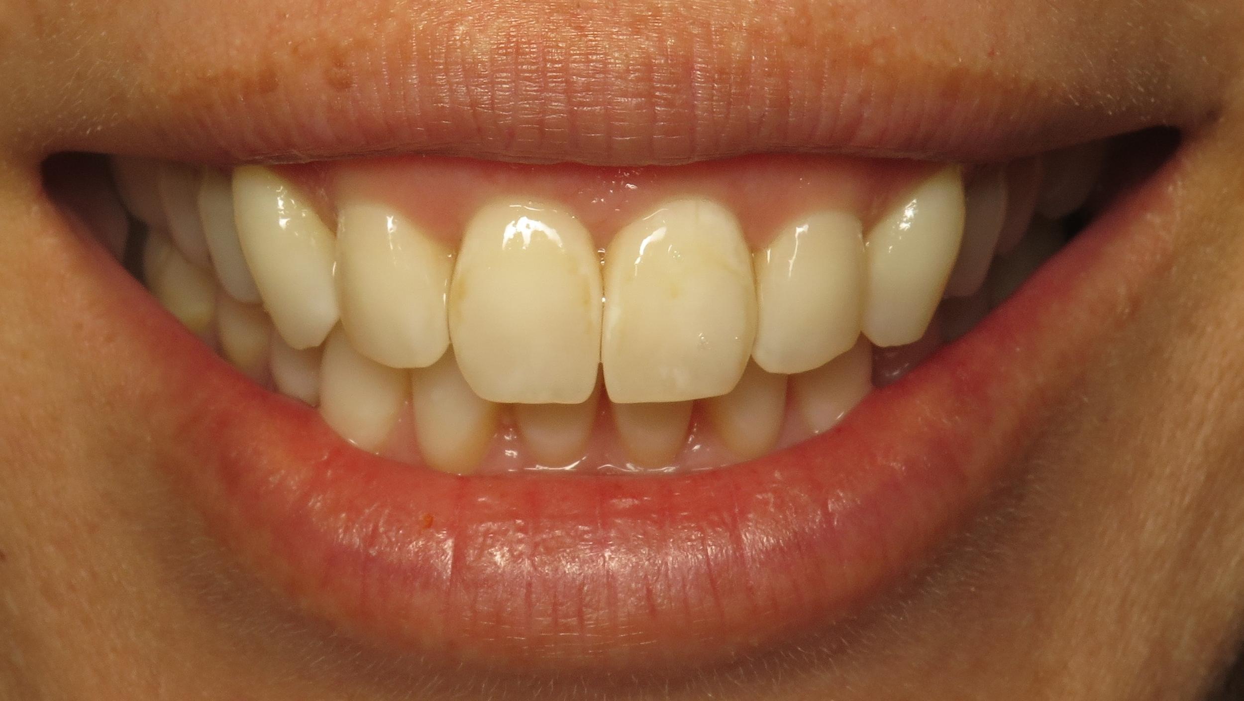 Thousand Oaks Family Dentistry - Golden Proportion Case 1 Lip framed smile.JPG