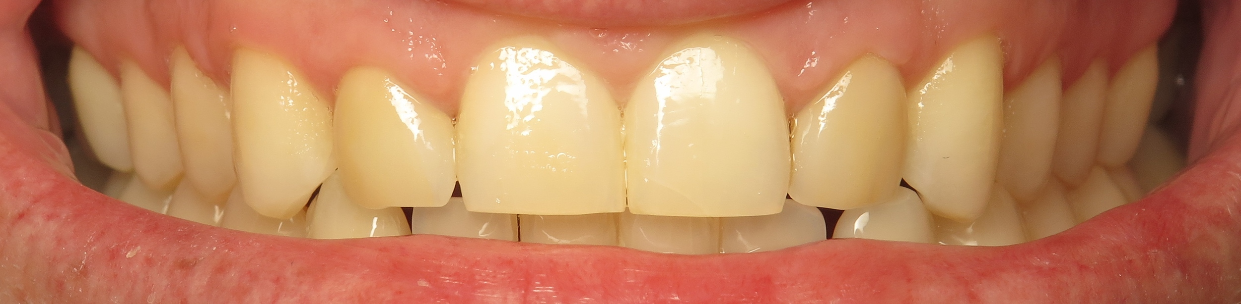 Thousand Oaks Family Dentistry - Golden Proportion Case 2 retracted smile.JPG