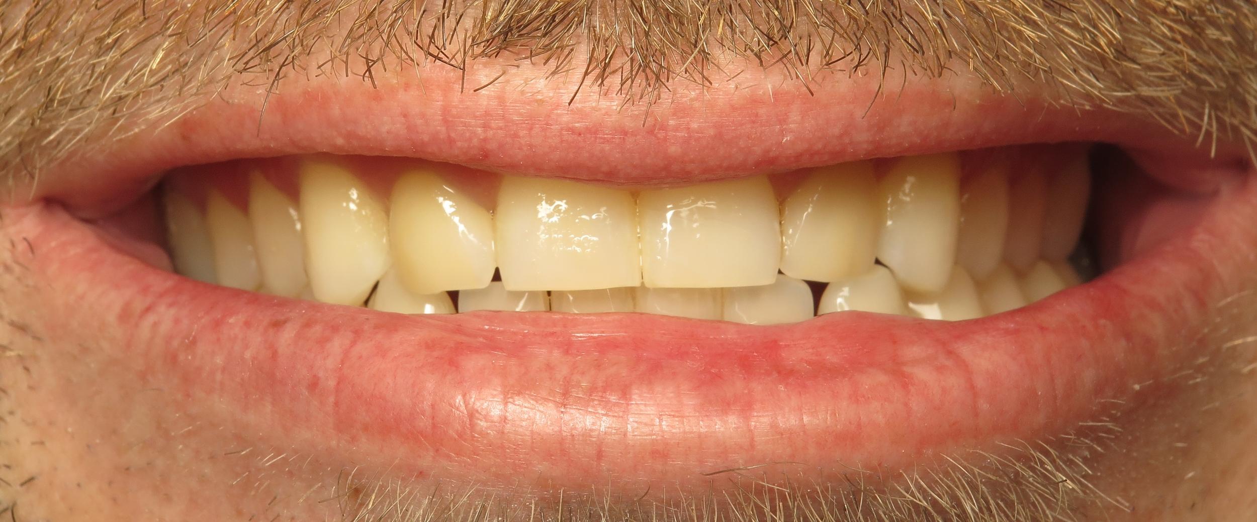 Thousand Oaks Family Dentistry - Golden Proportion Case 2 lip framed smile.JPG