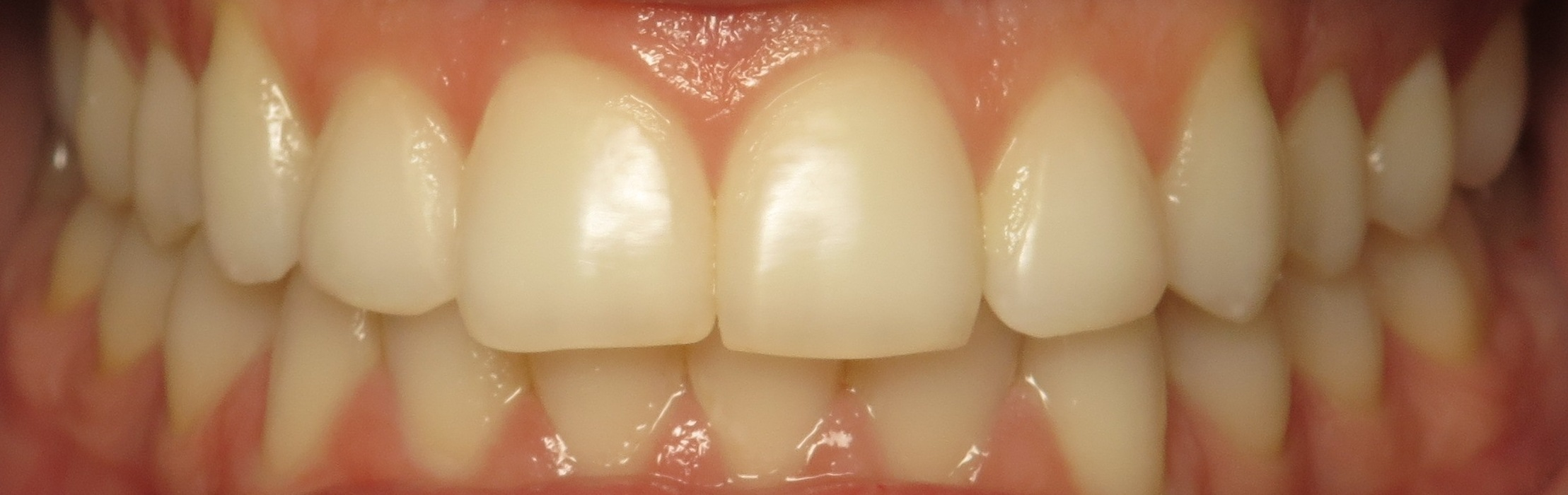 Thousand Oaks Family Dentistry - Golden Proportion Case 3 retracted smile.JPG