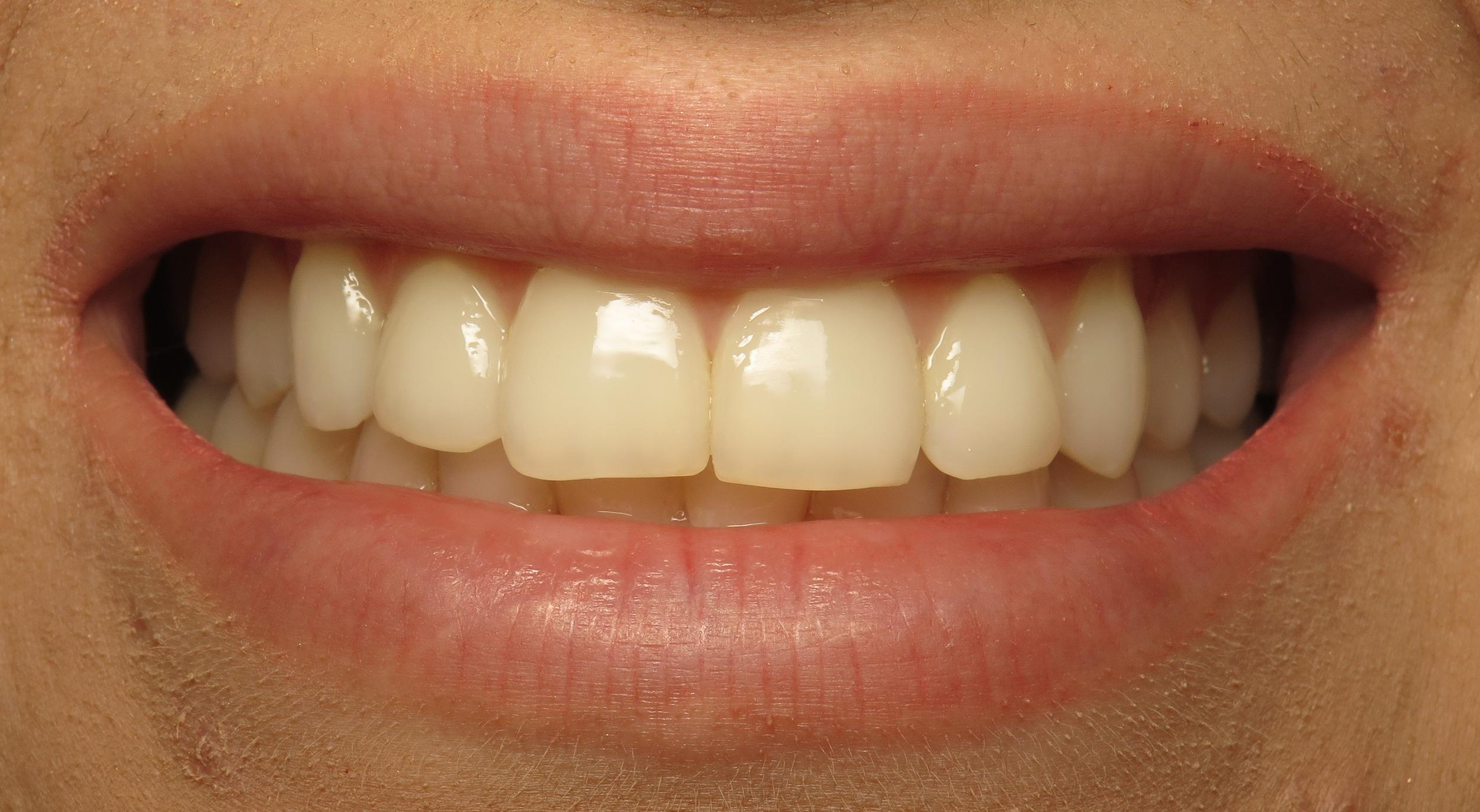 Thousand Oaks Family Dentistry - Golden Proportion Case 3 lip framed smile.JPG