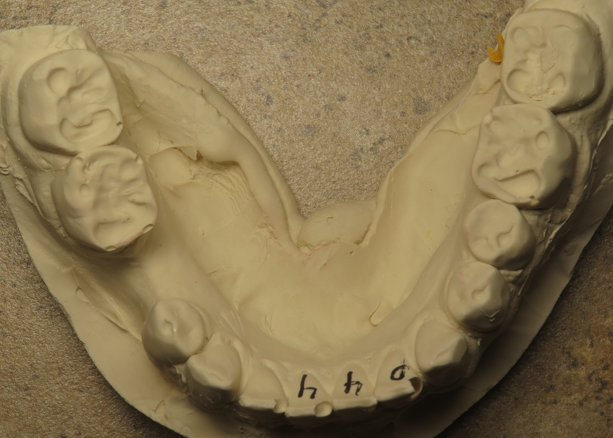 Stone modelwork of the patient before treatment
