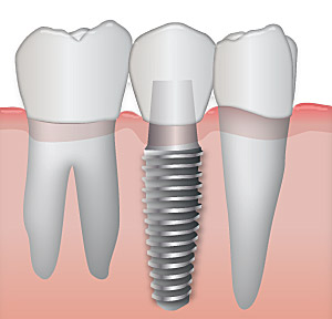 An illustration of an implant vs natural teeth.