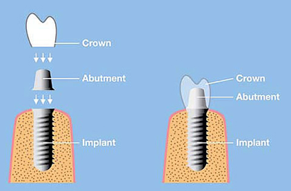 How the implant, abutment and crown work together.