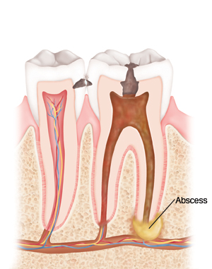 Dental abscesses start small but can have very serious effects.