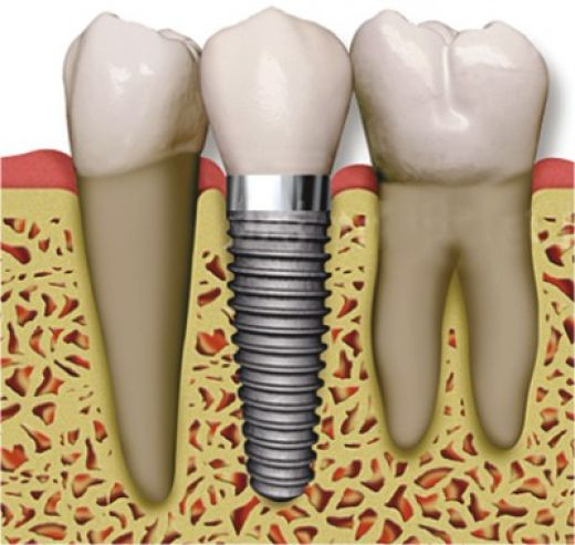 Here, you can visualize how important bone space is in placing an implant.