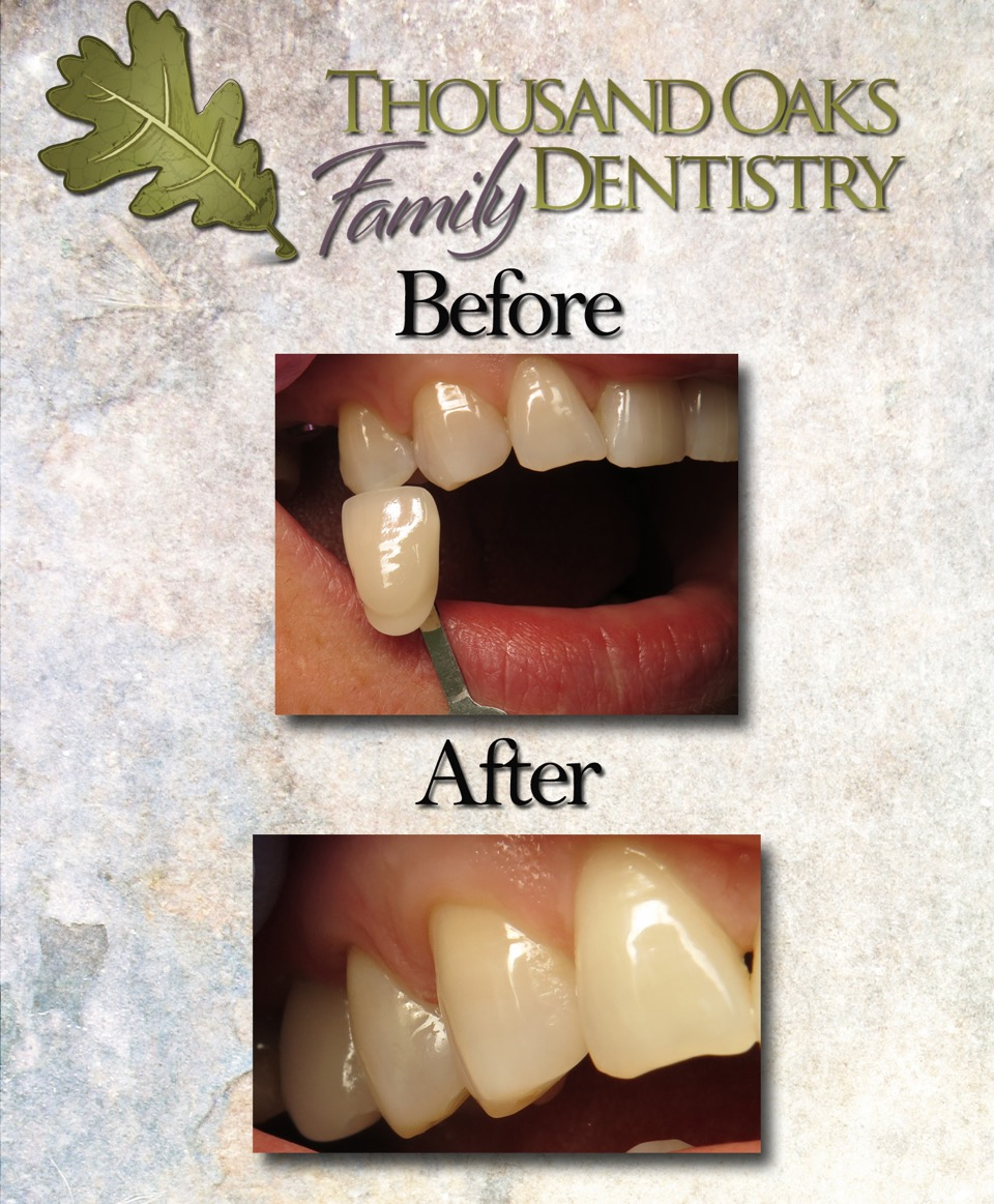 The final product! Notice how natural the implant crown looks in the patient's mouth.