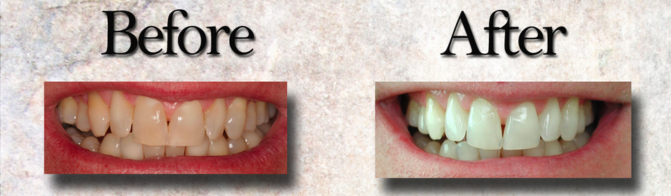 A whitening procedure performed at our office in addition to Invisalign invisible braces.