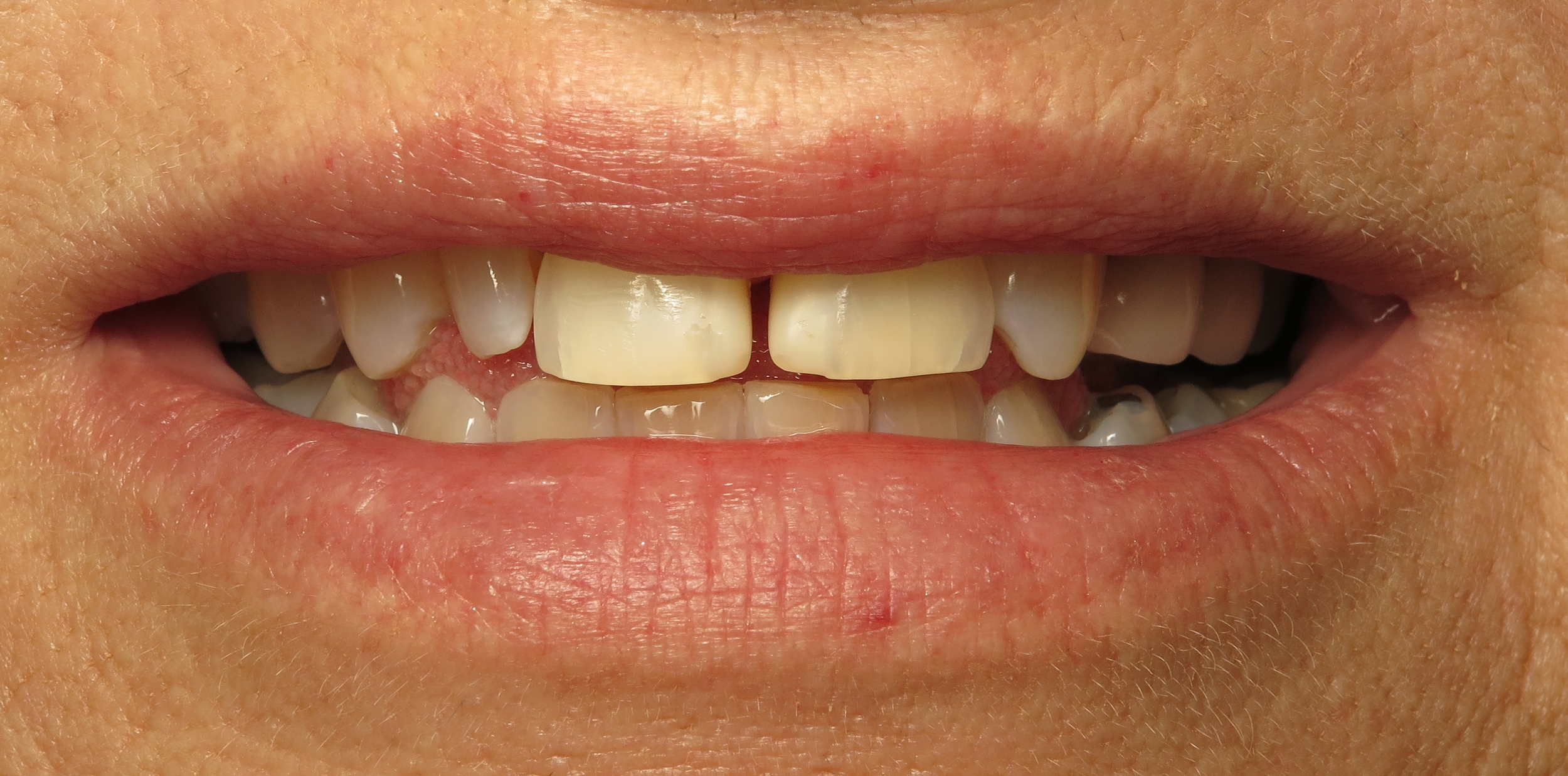 Before veneers, this patient's teeth had large spacings and were not completely symmetrical.
