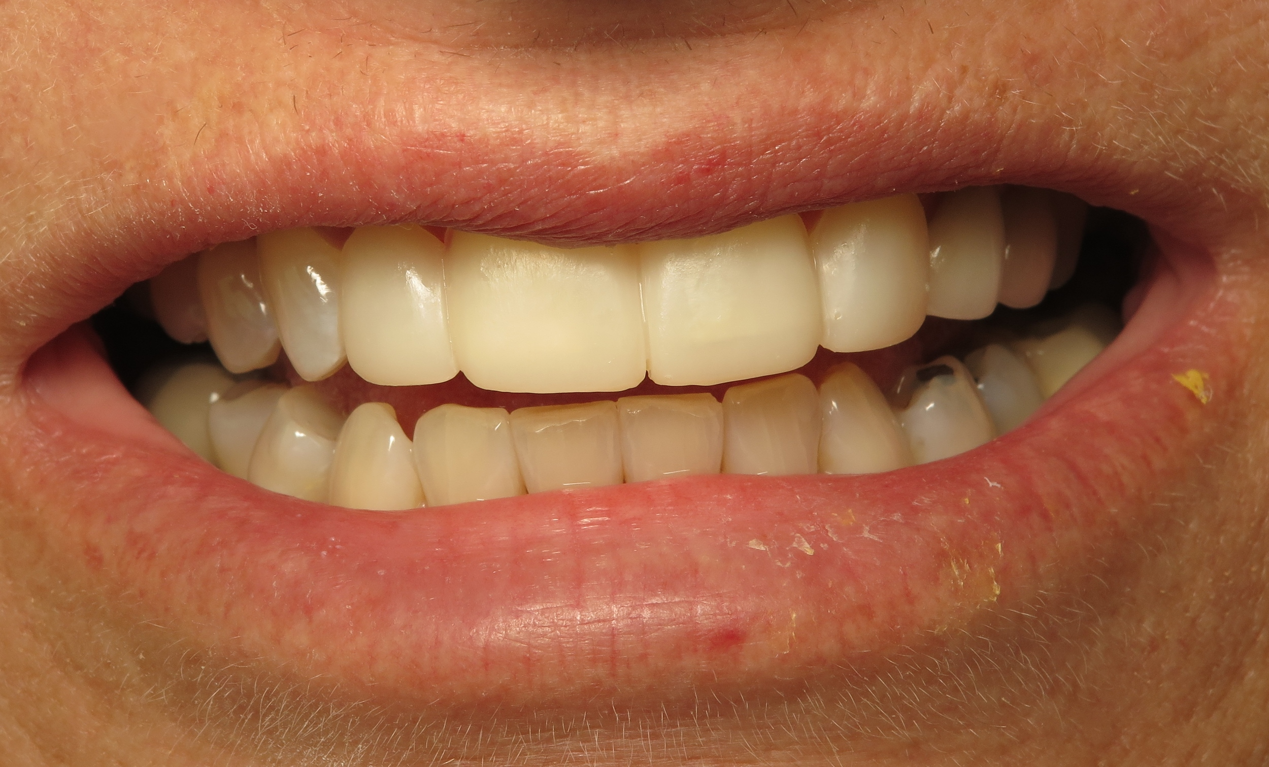 Here is the same patient with her temporary veneers on. You can really see how this procedure will create a more esthetic smile!