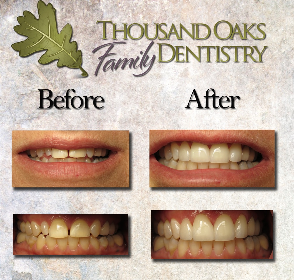 thousandoaksfamilydentistry.com