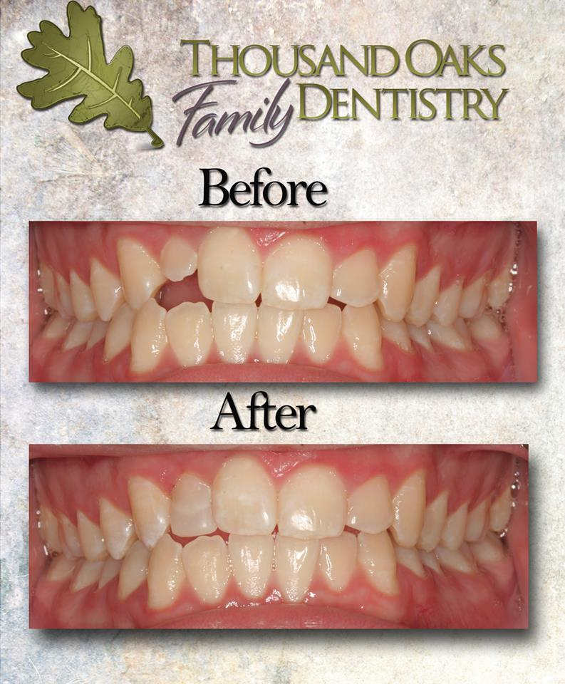 This new tooth was restored using only bonding and disking. What a change!