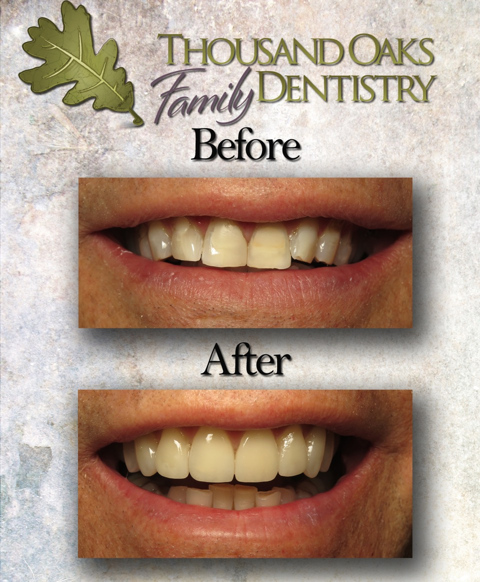 Another Great veneer case from Dr. Kari Ann Hong!