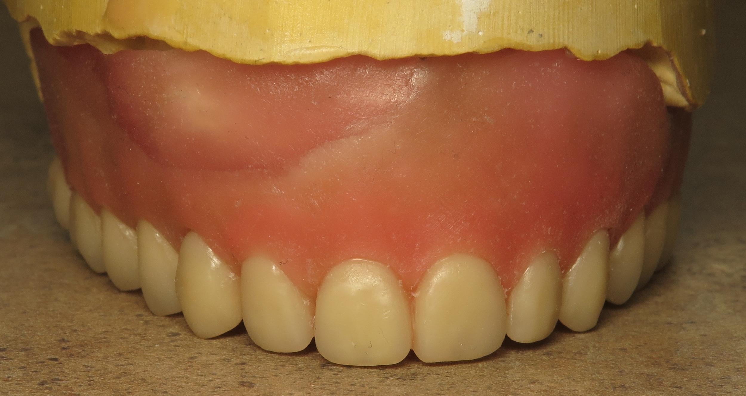 Thousand Oaks Family Dentistry - Full Upper Denture Waxed.jpg