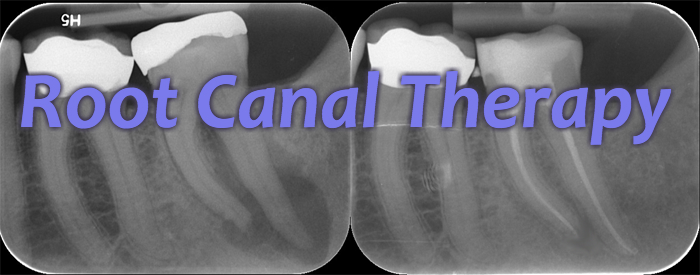 Before and after X-rays of a completed root canal (rightmost tooth). Notice how the roots have whiter centers once the procedure was finished.