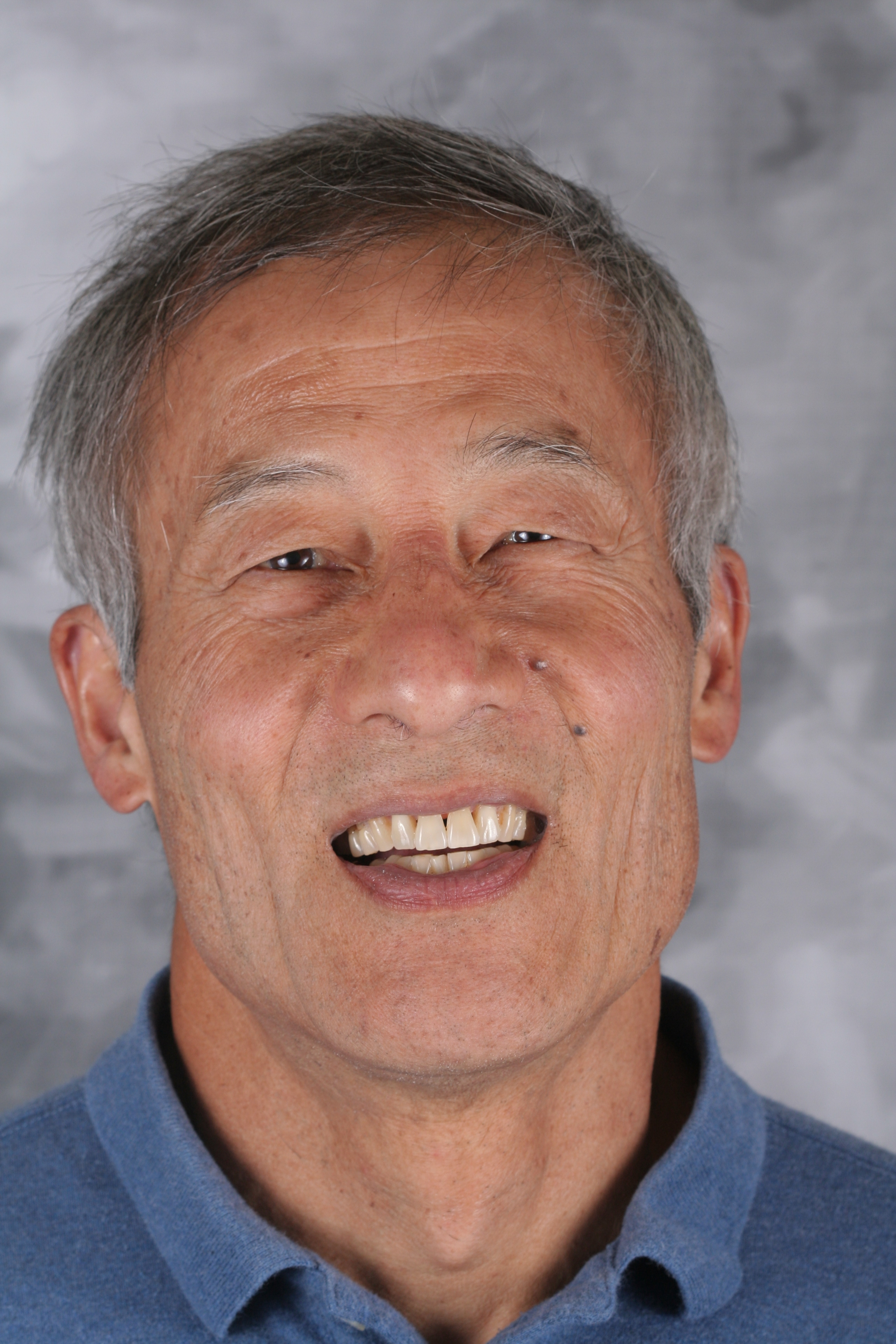 Dr. Jerry Hong, DDS