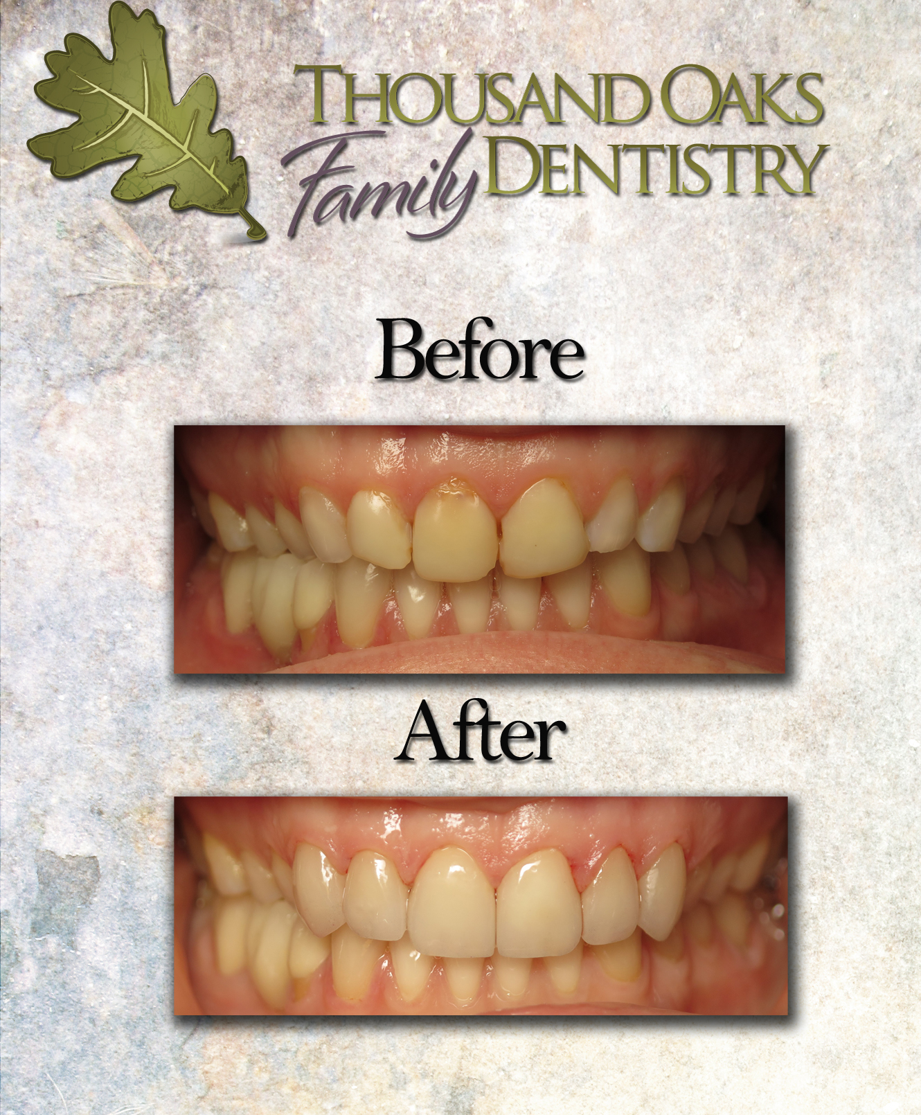 Thousand Oaks Family Dentistry- Veneers BY.jpg