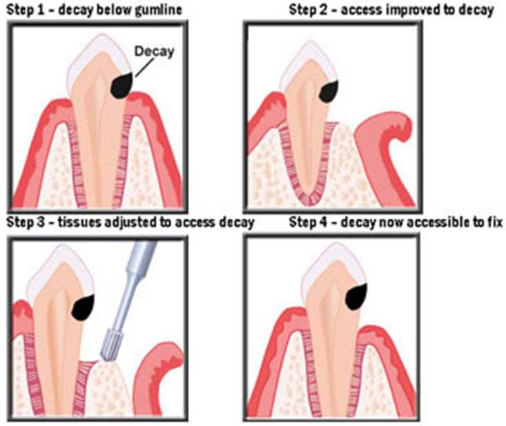 A quick overview of crown lengthening. Once the Decay is acessable, a permanent crown or filling can be placed.