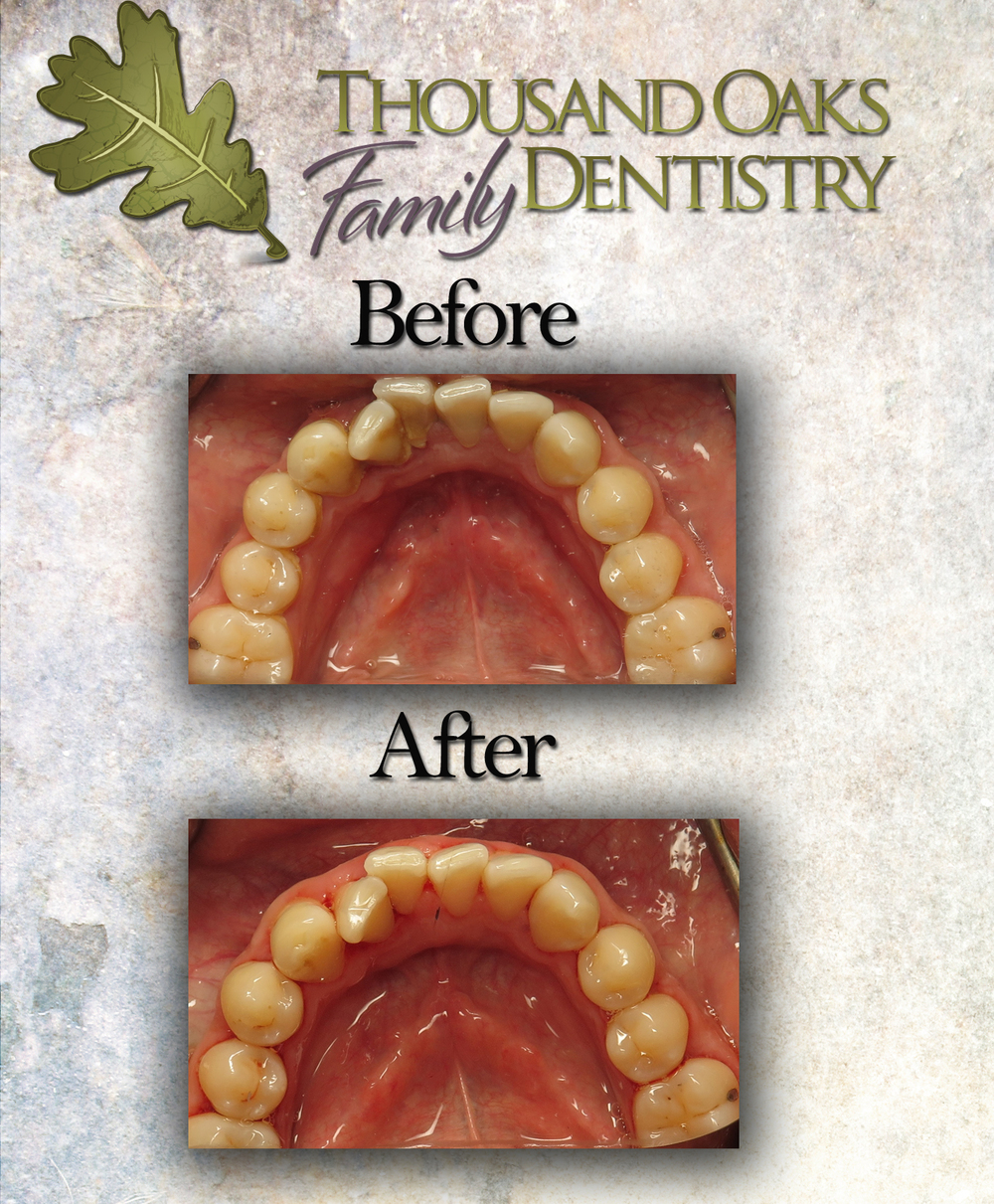 Pictured: A cleaning done at Thousand Oaks Family Dentistry using an ultrasonic scaler.