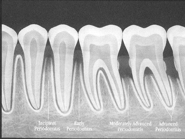 This image shows the progression of gum disease, as seen on an x-ray. The small white bumps that form on the sides of the teeth are tartar below the gumline.
