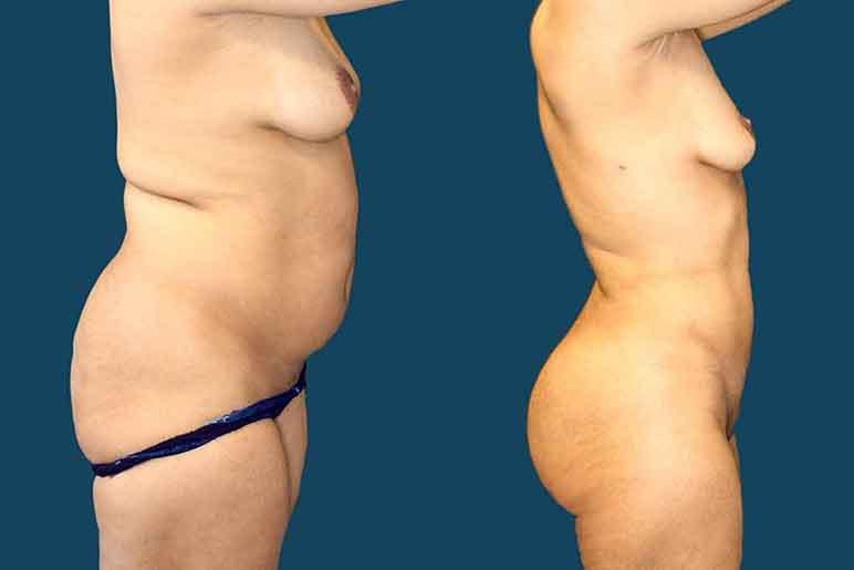 side-lipo-fat-transfer-01a.jpg