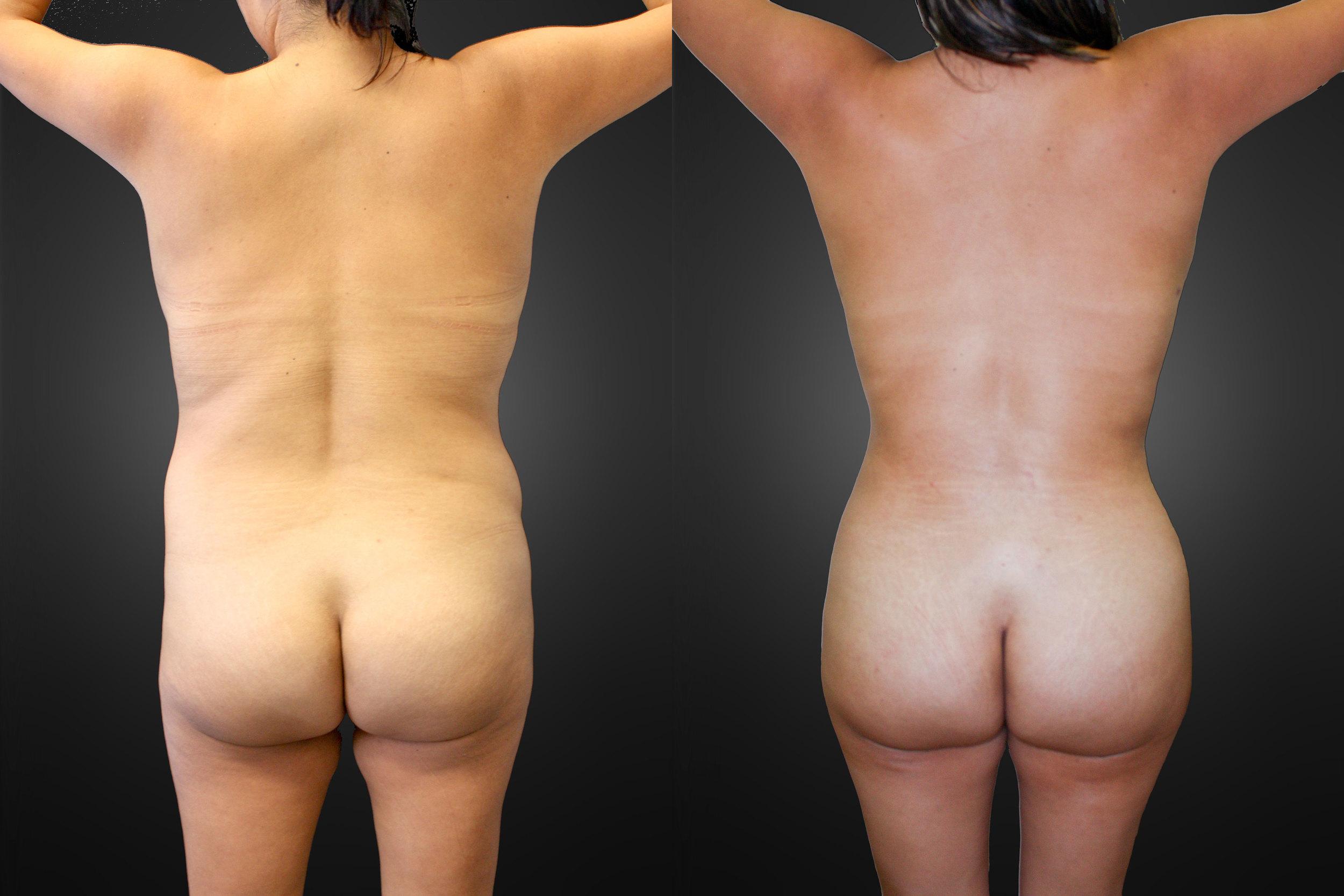 liposuction-back-02.jpg