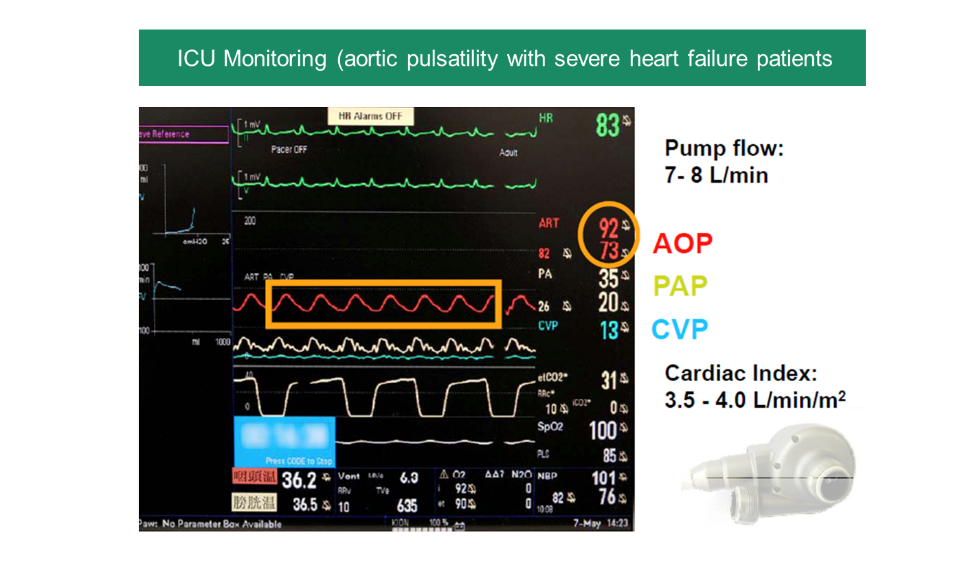arterial pulse_REV.png
