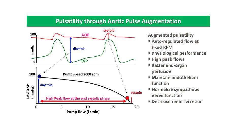 Pulsatility pulse augmentation.png