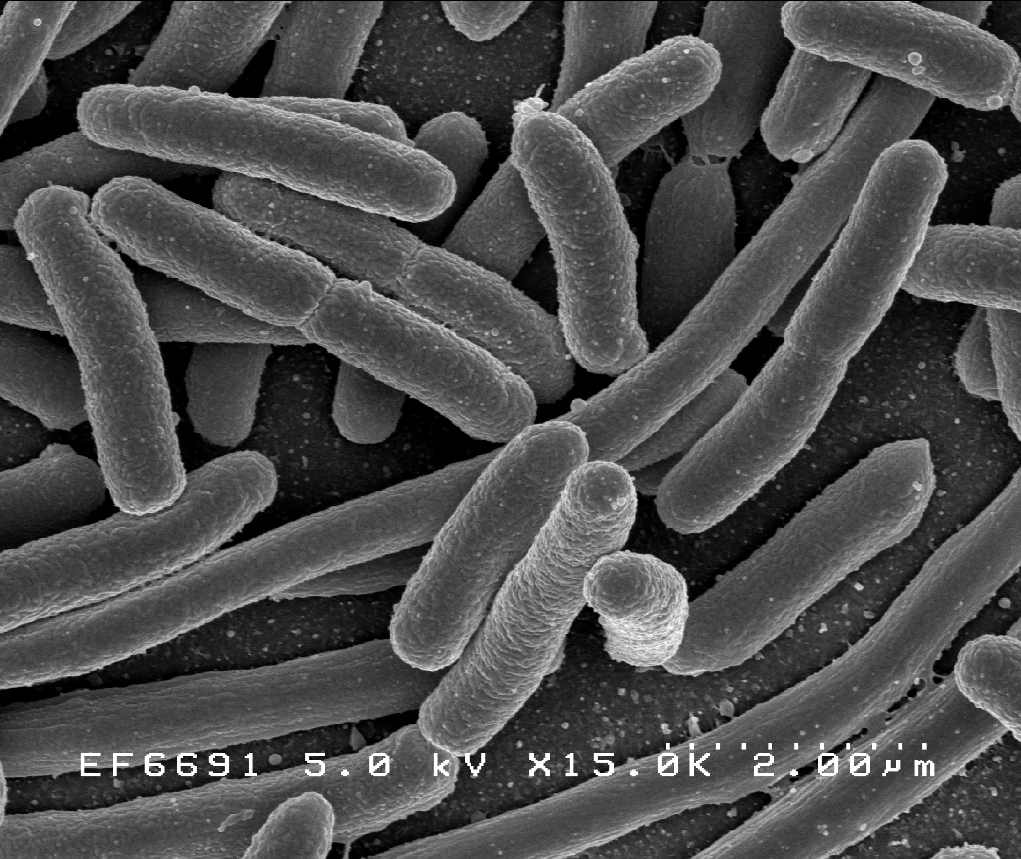 Scanning electron micrograph of  Escherichia coli,  grown in culture and adhered to a cover slip. (  Photo:   NIAD )