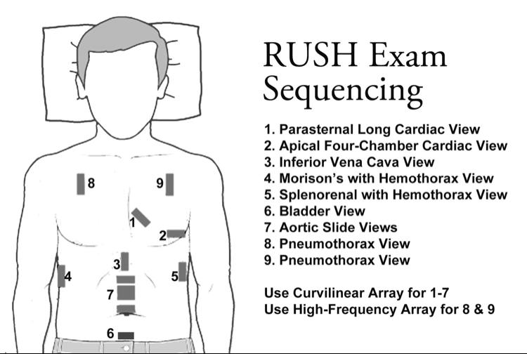 Image 3: RUSH exam imaging locations