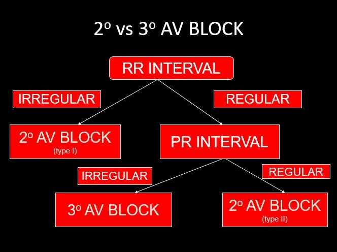 Algorithm 2nd degree vs 3rd degree AV block.jpg