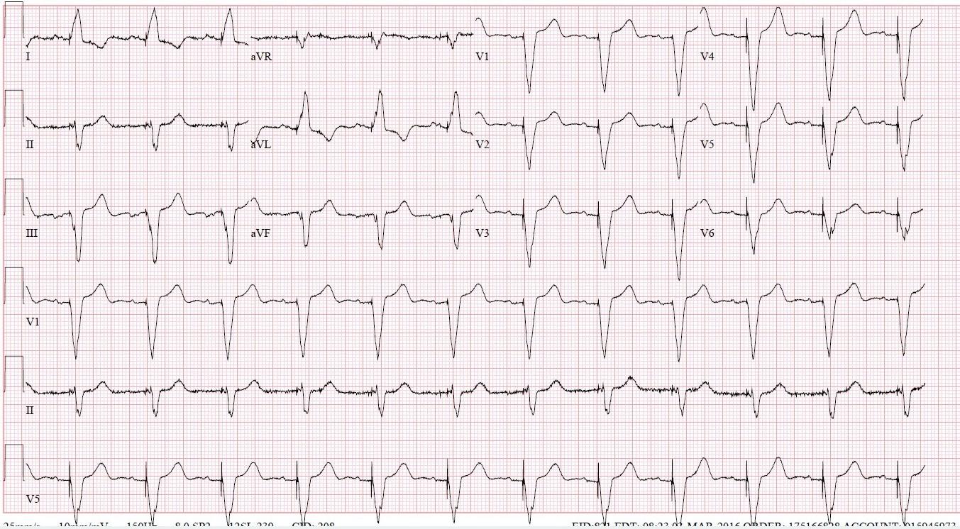 2019 7-28 previous EKG.jpg