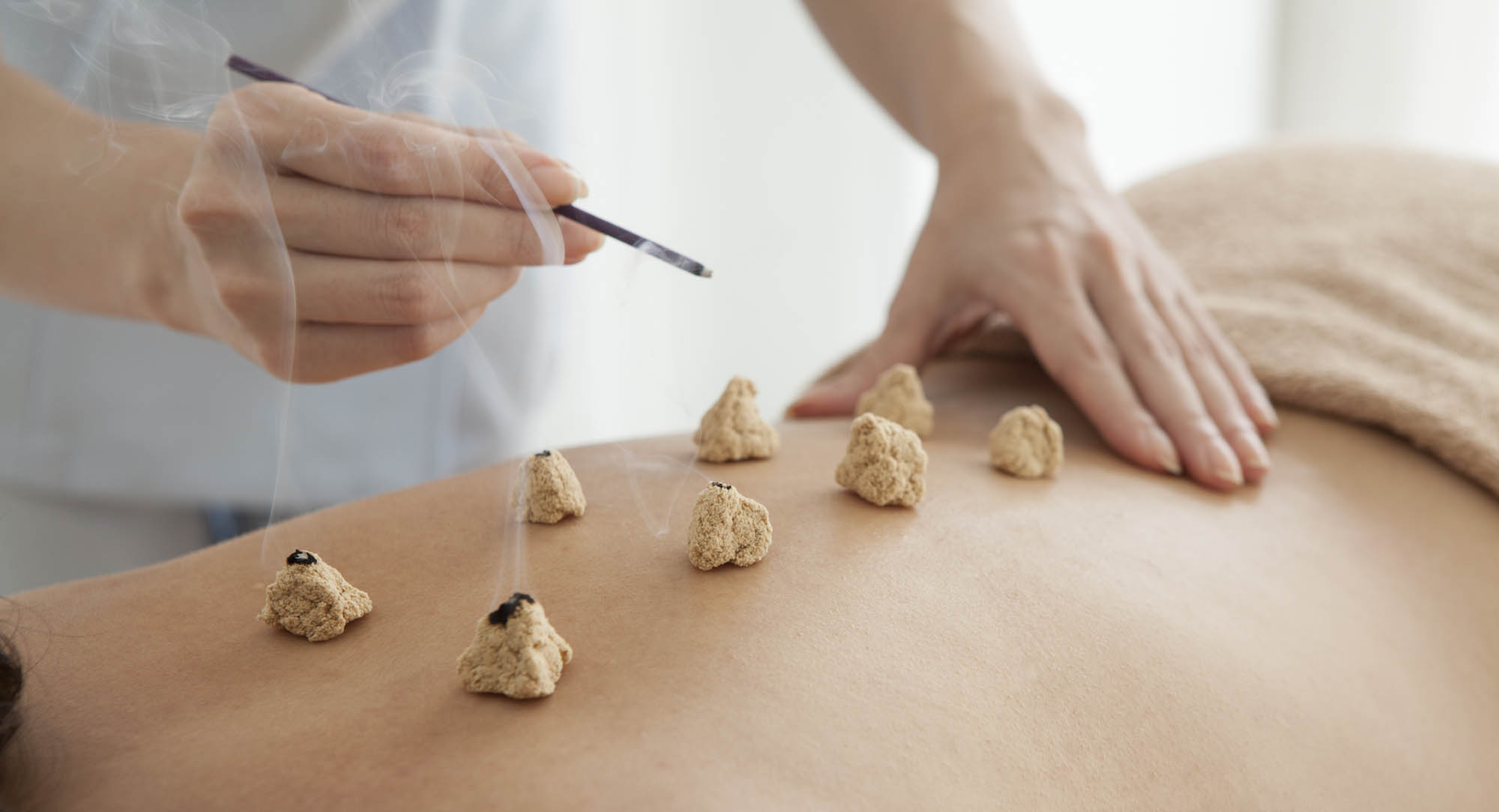 Moxibustion can be done several ways, to include placing the