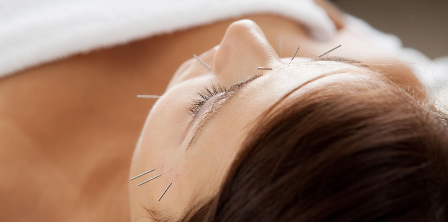 acupuncture-facial-rejuvenation.jpg