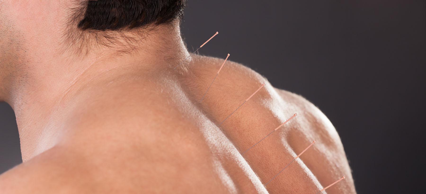 acupuncture-men.jpg