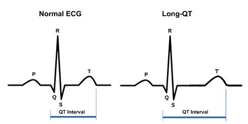 A prolonged QT interval can increase one's risk of a fatal arrythmia and is easily measured on a 12 lead ECG. Above 450 ms in a male and 470 ms in a female is considered abnormal prolongation.