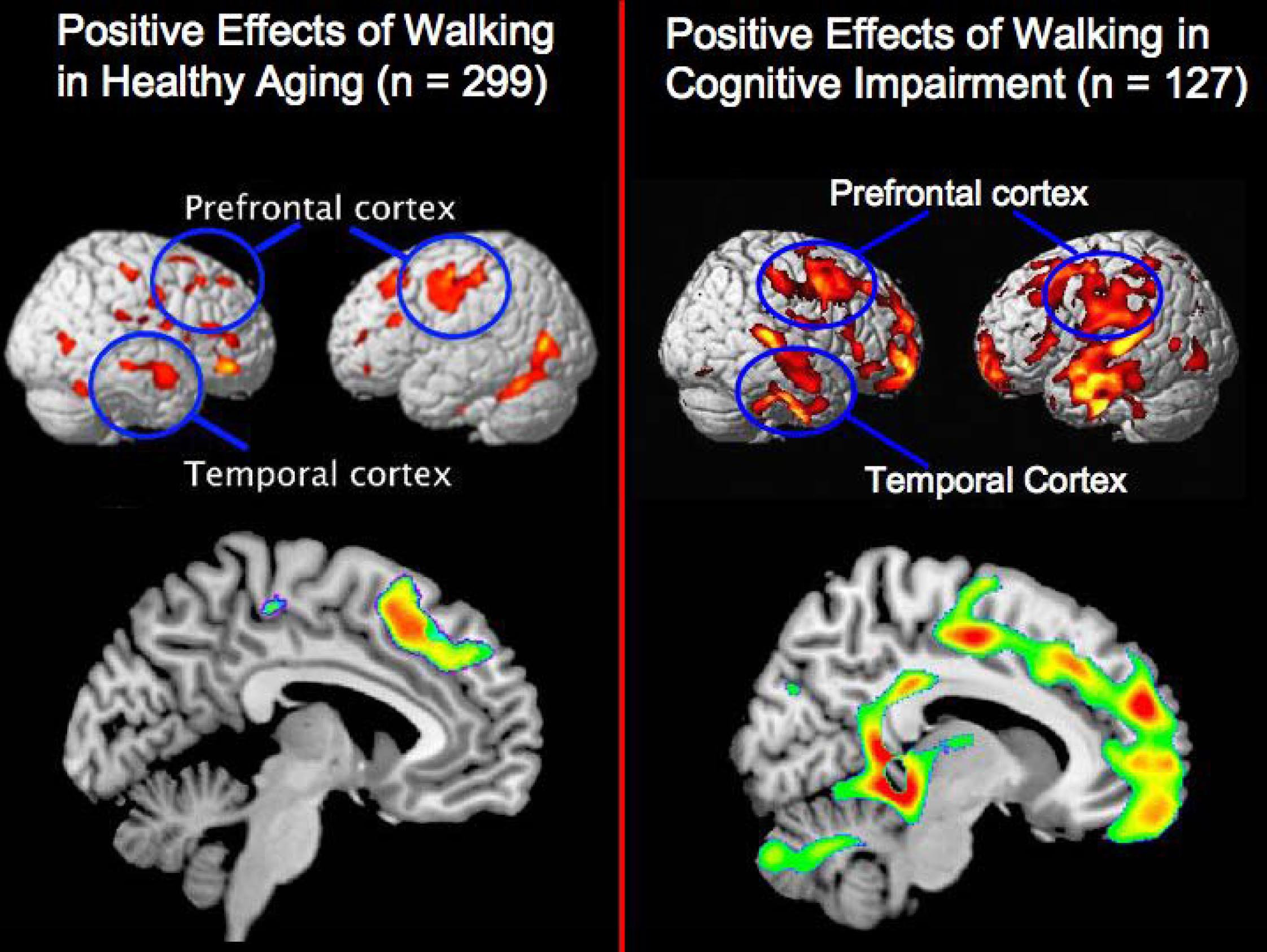This figure compares the beneficial effects of physical activity on the brains of healthy aging individuals to the positive relationships between exercise and brain structure in cognitively impaired persons with either mild cognitive impairment or Alhzeimer's.