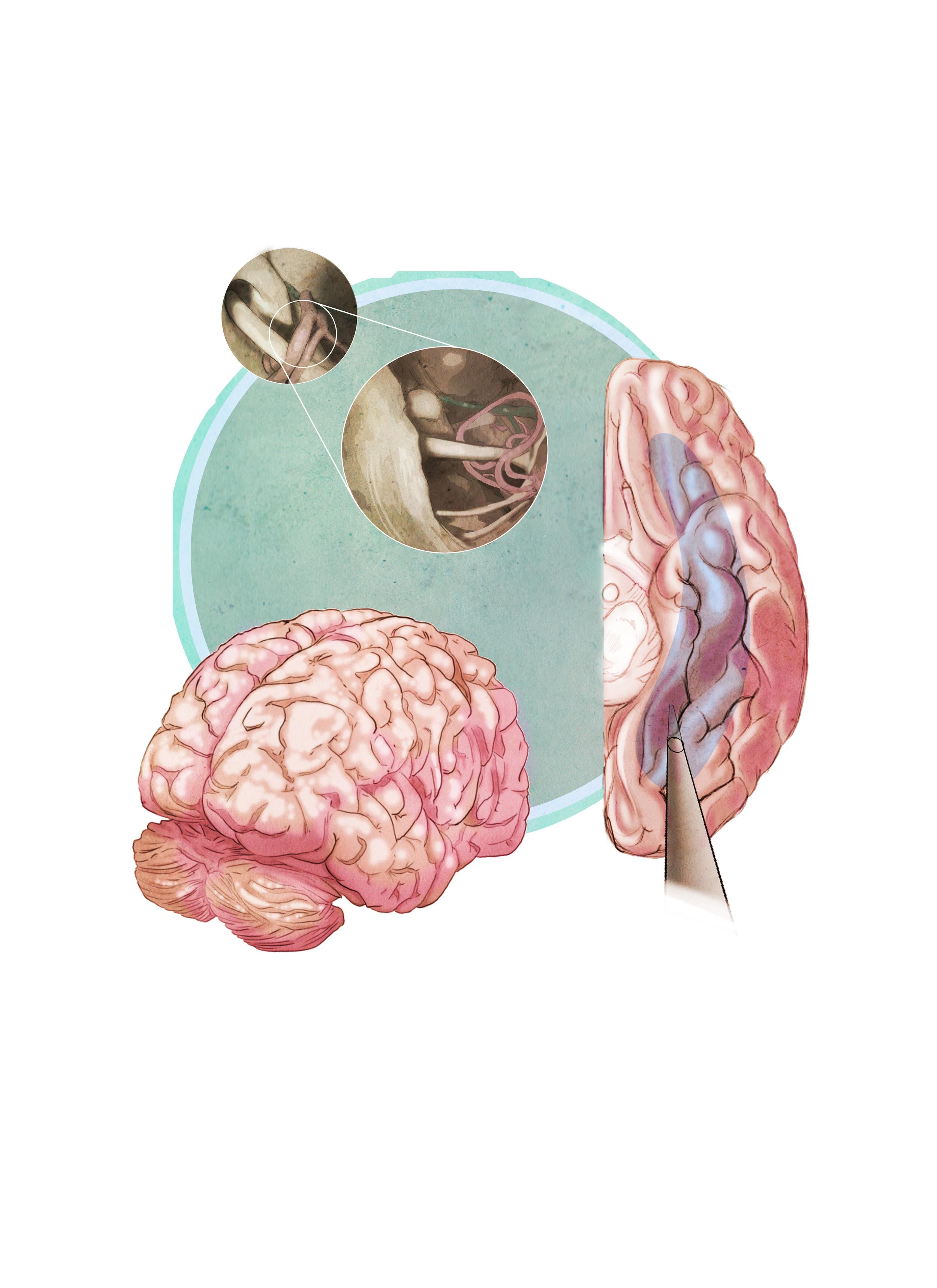 Neurosurgery Study