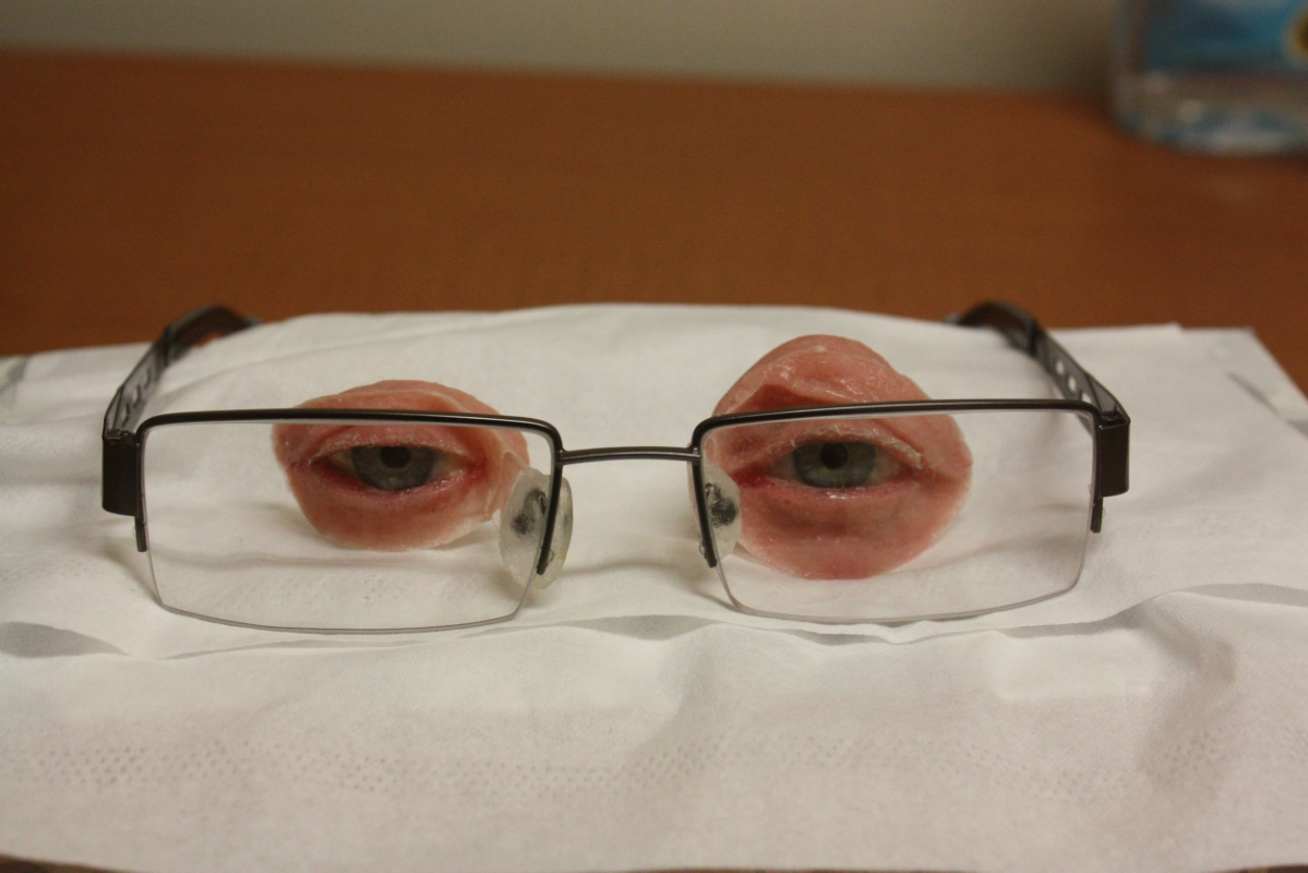 Spectacle-held Bilateral Orbital Prostheses