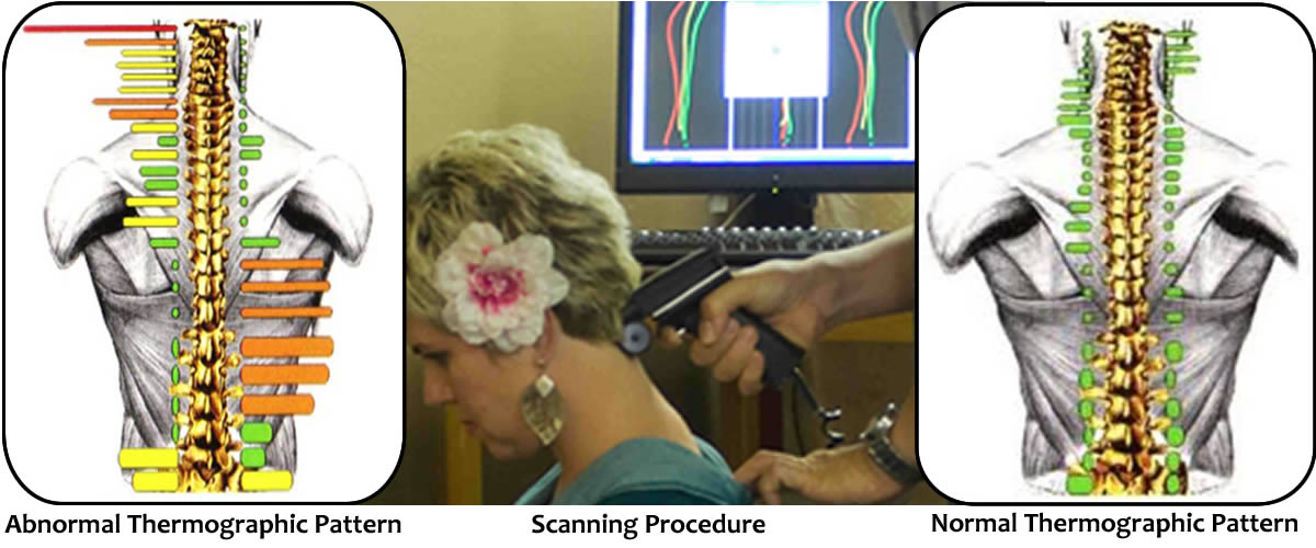 truHealth Specific Chiropractic Studio Upper Cervical Chiropractic Thermography Scans
