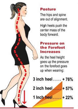 Just some of the negatives associated with extensive heel use.