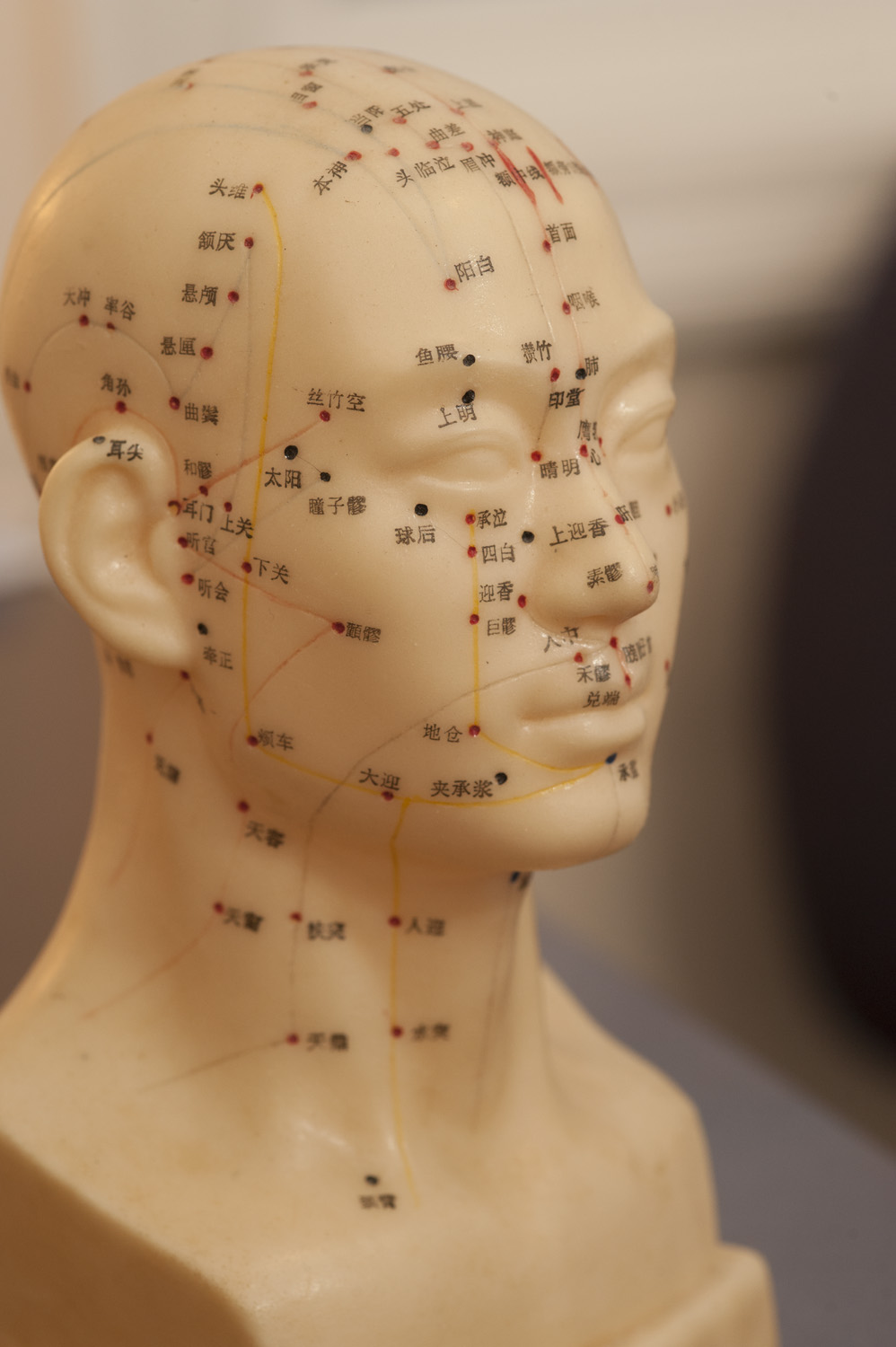 Nancy Graham, of Spring Lotus, in Rhode Island, examines a patient before performing acupuncture